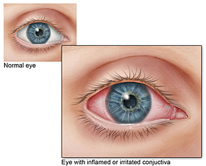 What Is Pink Eye And How Can I Treat It Intranet Bloomu Edu
